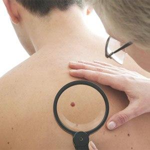 Наблюдение врача дерматолога в теч 3х мес