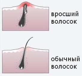 Вросшие волосы в зоне бикини в домашних