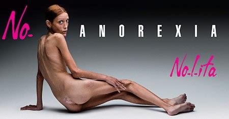 Активно боролась с анорексией Изабель Каро – французская модель, которая страдала от тяжелей формы этой болезни и вела активную пропаганду здорового питания.