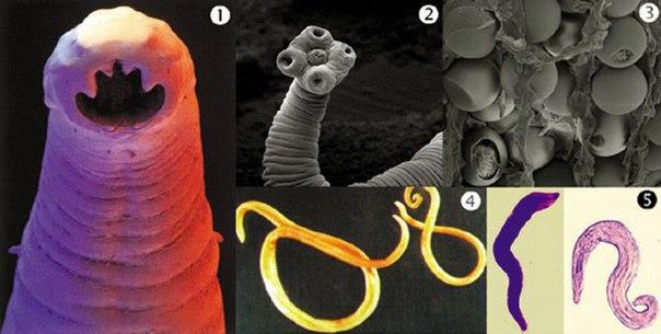 Әр адамда өмір сүретін паразиттерден қалай құтылуға болады?