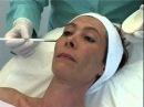 DermaCeutic Soft Peel Demo | Nu-U Essentials MediSpa