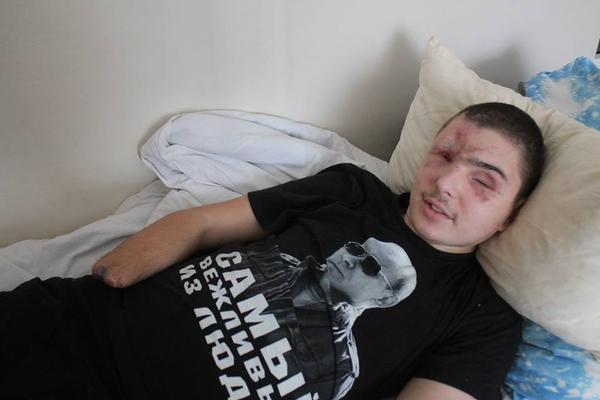 За сутки в боях с террористами Украина потеряла двоих воинов, 18 - ранены, - Генштаб - Цензор.НЕТ 5594