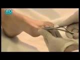 Лечения вросшего ногтя видео урок 2