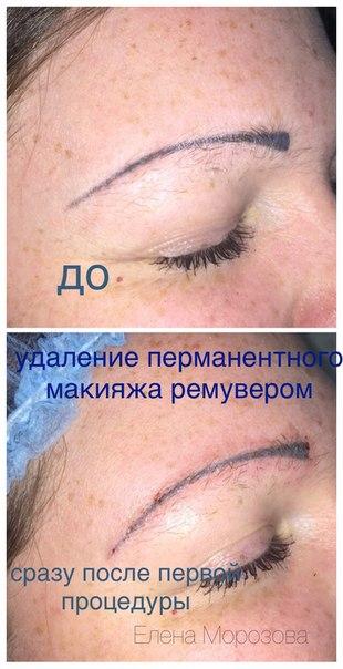 Выведение перманентного макияжа ремувером отзывы