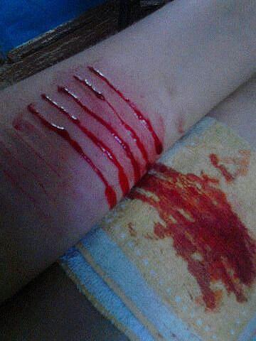 кровь 2015 фото