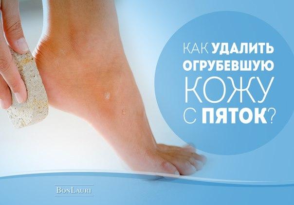 Как убрать на пятках огрубевшую кожу в домашних условиях