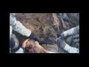 ISAF soldier steps on landmine - **WARNING GRAPHIC MEDICAL PROCEDURES**
