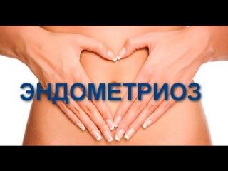 Эндометриоз женские проблемы как их решить