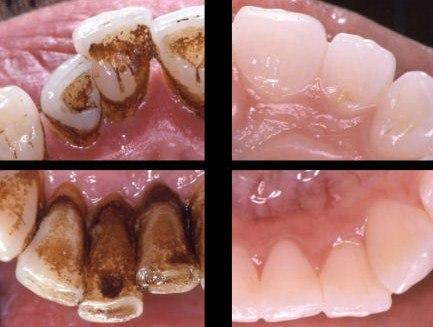 Ультразвук для чистки зубов в домашних условиях