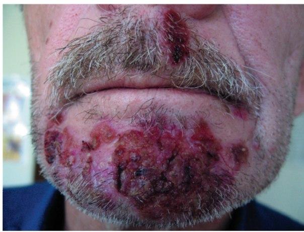 сикоз бороды и усов