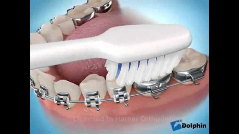 Как правильно чистить зубы с брекетами?