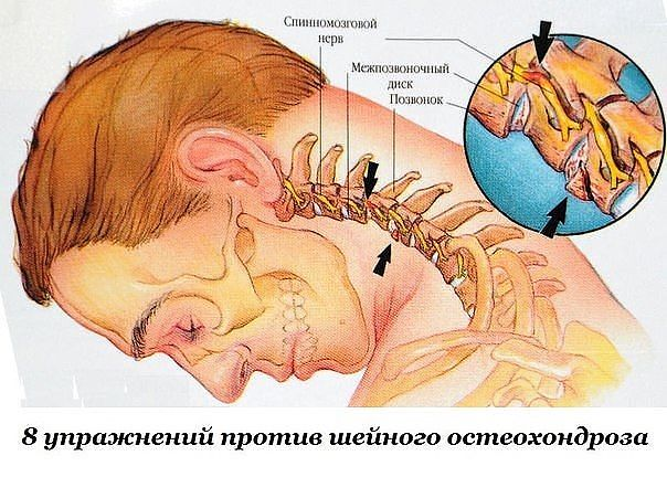 La cultura física medicinal a la enfermedad del departamento de pecho de la columna vertebral