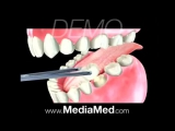 Root canal therapy royal