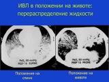 Респираторная поддержка при ОРДС (кИВЛ14дек) Киров М. Ю.