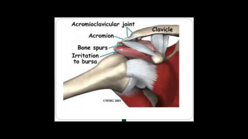 Плечевой сустав Строение функционирование проблемы решения