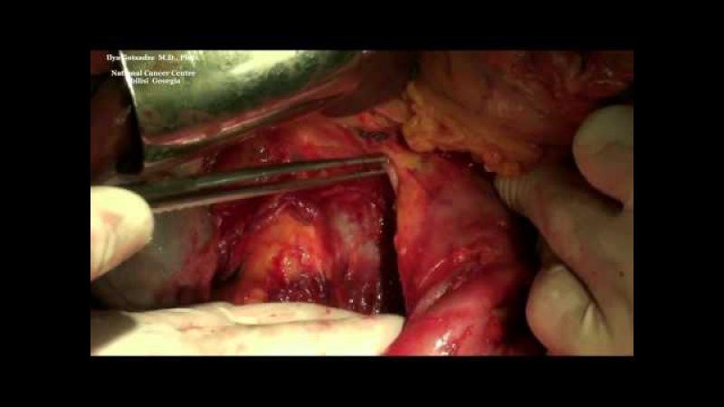 Удаление забрюшинной опухоли на фоне перитонита и сепсиса Клинический случай