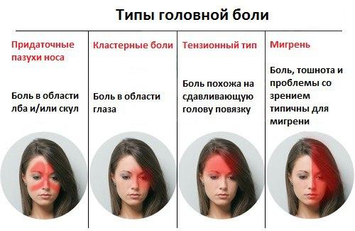пульсирующая боль в виске и глазу