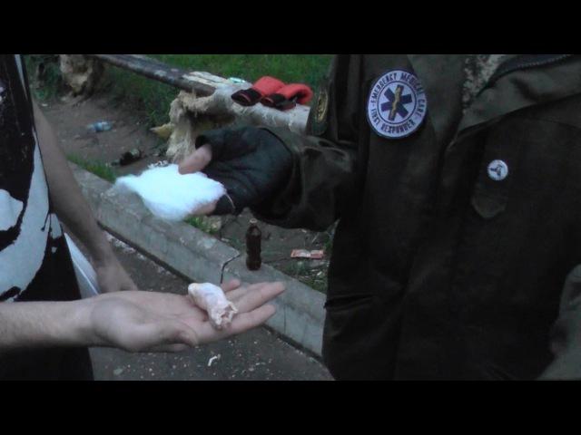 Первая помощь при колото-резаных. Отрубленный палец.