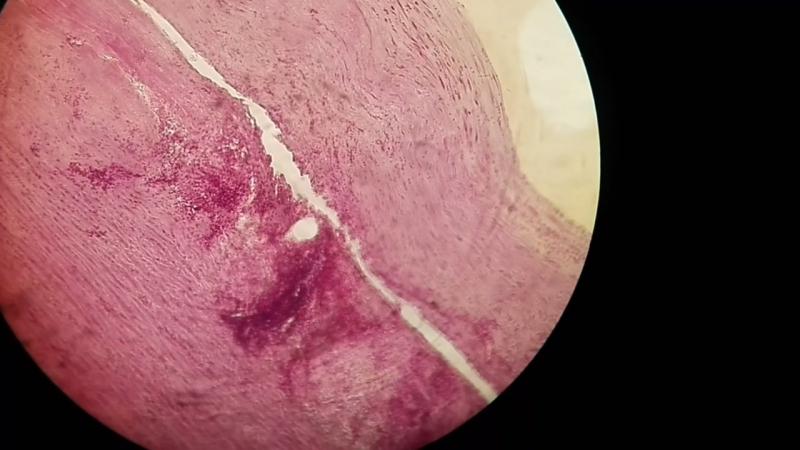 Сифилитический мезаортит