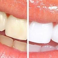 Професійне Зубів