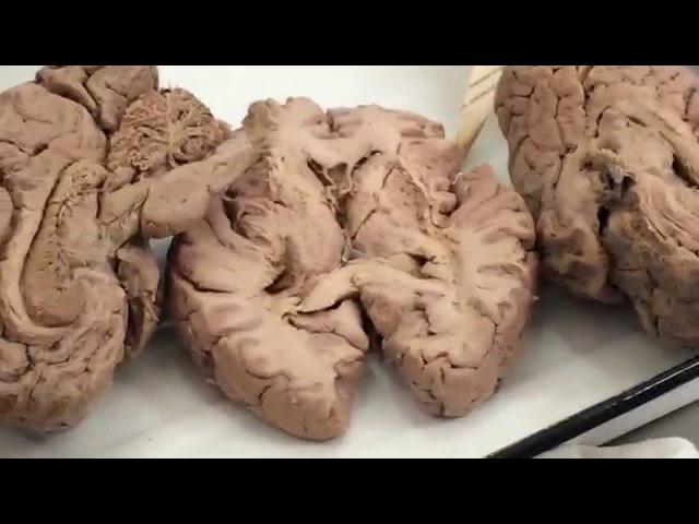 Промежуточный и средний мозг.