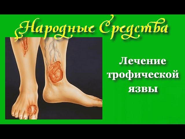 Как лечить трофическую язву народными средствами Лечения трофической язвы