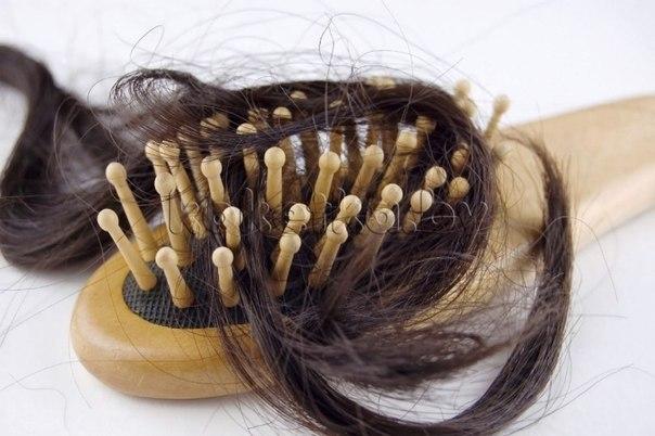 зуд головы выпадение волос перхоть