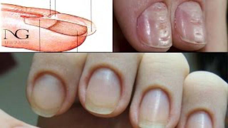 Строение ногтя и проблемы после маникюра. Ответы на вопросы. Periscope / The structure of the nail