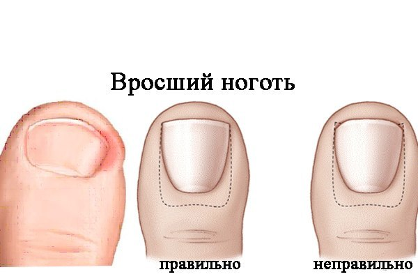 Грибок ногтя на ноге стадии