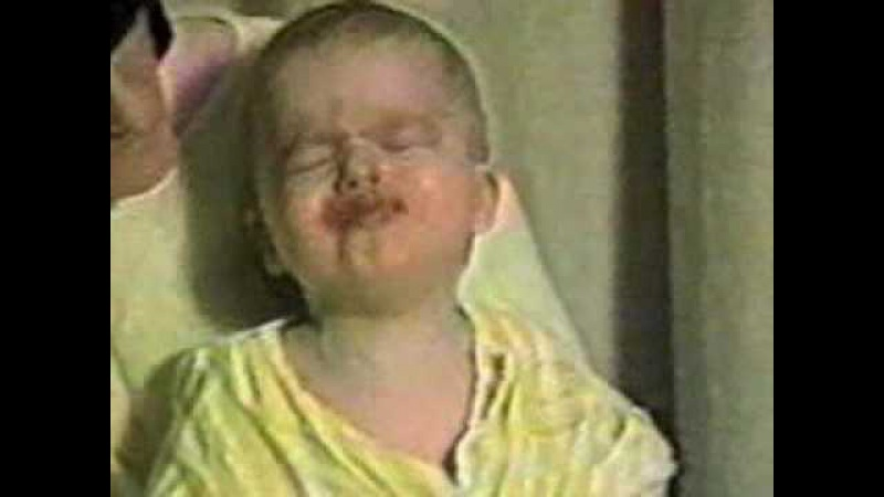 Pertussis Cough Video
