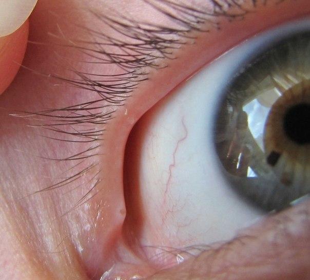 Прыщ в глазу в уголке глаза