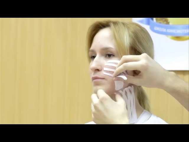 Кинезиотейпирование в косметологии
