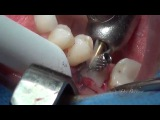 Immediate Implant placement in Lower molar area. By. Dr. Bechara