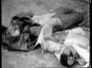 Немецкие войска в Крыму в 1941 году. Феодоссия 1942 год - убитые в госпитале раненные немцы. Война - это зараза, лишающая людей разума.