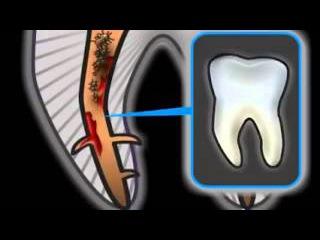 Осложнения при лечении корневых каналов (Root canal treatment complications)