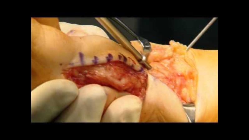 Artrodesis de Lapidus (ESP)