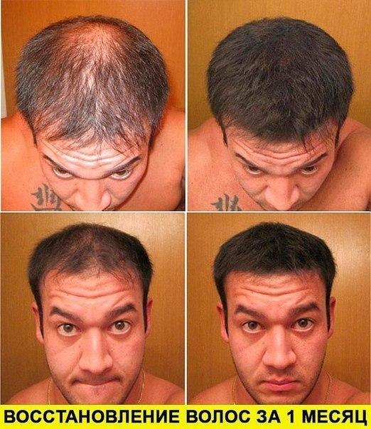 как восстановить волосы при седине