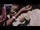 Женское обрезание. Ребенку 3 года. Цветок пустыни