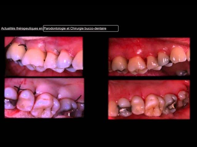 Éric Rompen Actualités thérapeutiques en parodontologie et chirurgie bucco dentaire