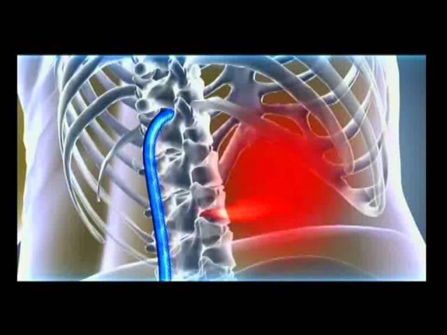 Электростимулятор против боли в спине