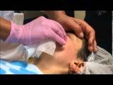 логопедический массаж при парезе лицевого нерва