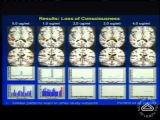 A Look at the Unconscious Brain Under General Anesthesia
