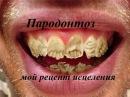 Пародонтоз - мой рецепт исцеления ( .