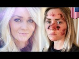 Tanning disaster: woman posts bloody-faced selfie to warn about skin cancer - TomoNews
