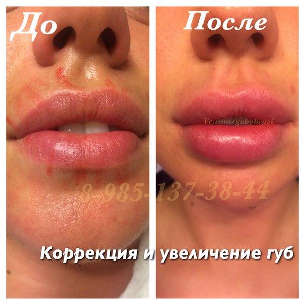 увеличение губ цена тюмень
