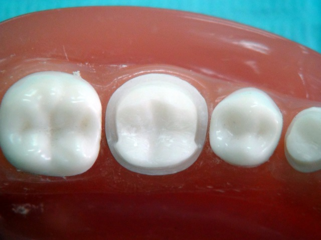 Metal ceramic crown preparation