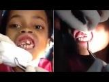 Видео: Стоматолог вытащил 15 опарышей из десен 10-летней бразильской девочки