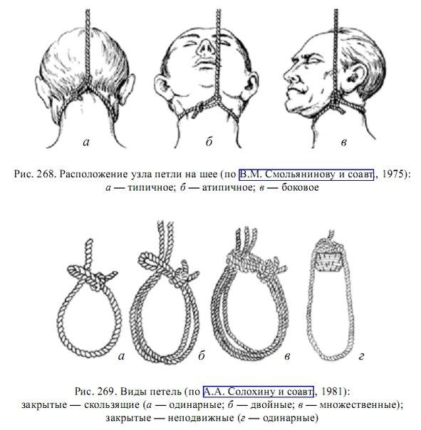 Как сделать петлю на шею