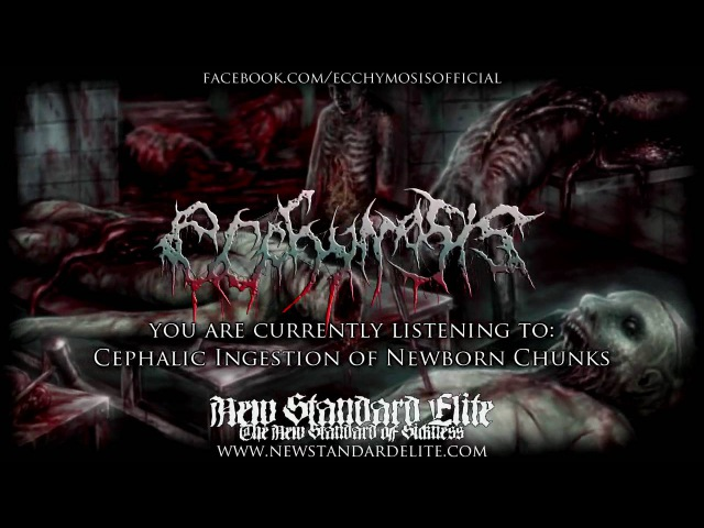 "Ecchymosis - ""Cephalic Ingestion of Newborn Chunks"" (Aberrant Amusement In Cadaveric Vomit... 