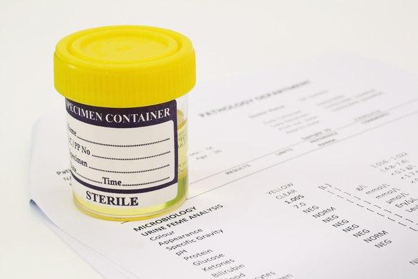 высокое содержание лейкоцитов в крови уролог
